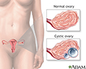 Ovarian cysts