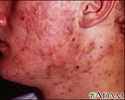 Acne, cystic on the face