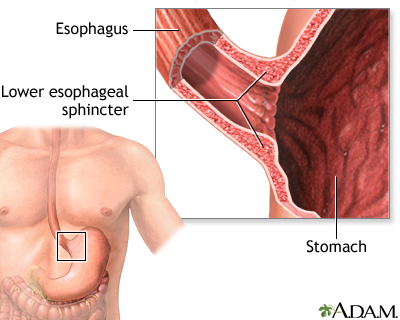 achalasia, Human body