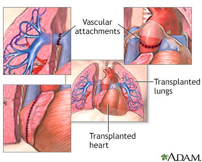 Pulmonary hypertension normal anatomy ccuart Choice Image