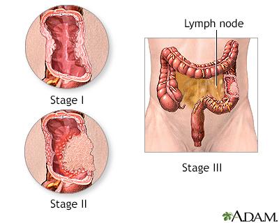 define-anal-cancer