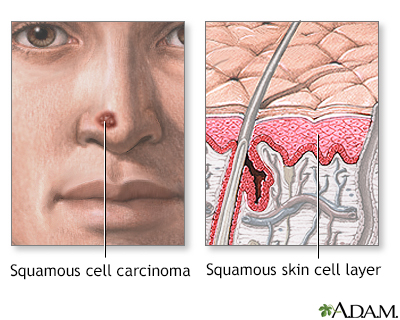 Squamous cell cancer